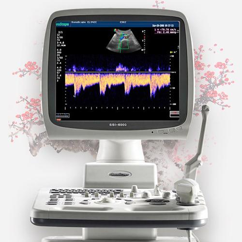 Ультразвуковой сканер SSI-6000