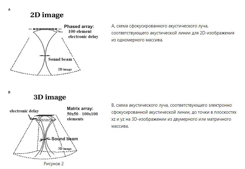 Процесс сканирование изображений. Датчики УЗИ