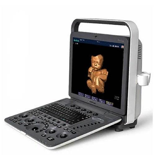 Портативный УЗ-сканер SonoScape S7
