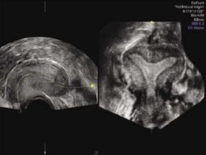 Аппарат ультразвуковой диагностики Voluson-E6