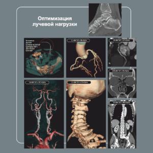 Томограф компьютерный Optima-CT660 - Ситимед